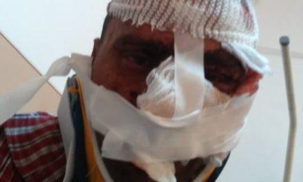 Barbat din Hudesti  desfigurat prin  bataie  de un prieten